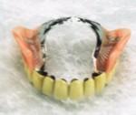 入れ歯の金属義歯アタッチメント