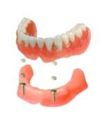 磁石式入れ歯の治療